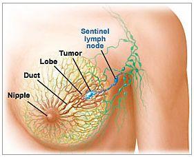 wo sind lymphknoten